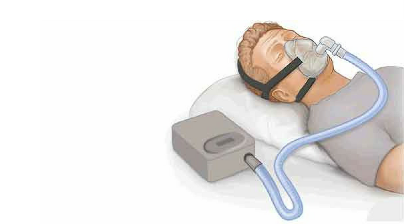 Improve CPAP Adherence